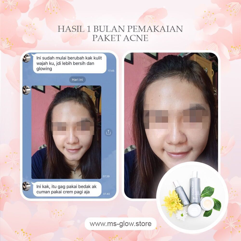 testimoni ms glow acne series + premium acne cream