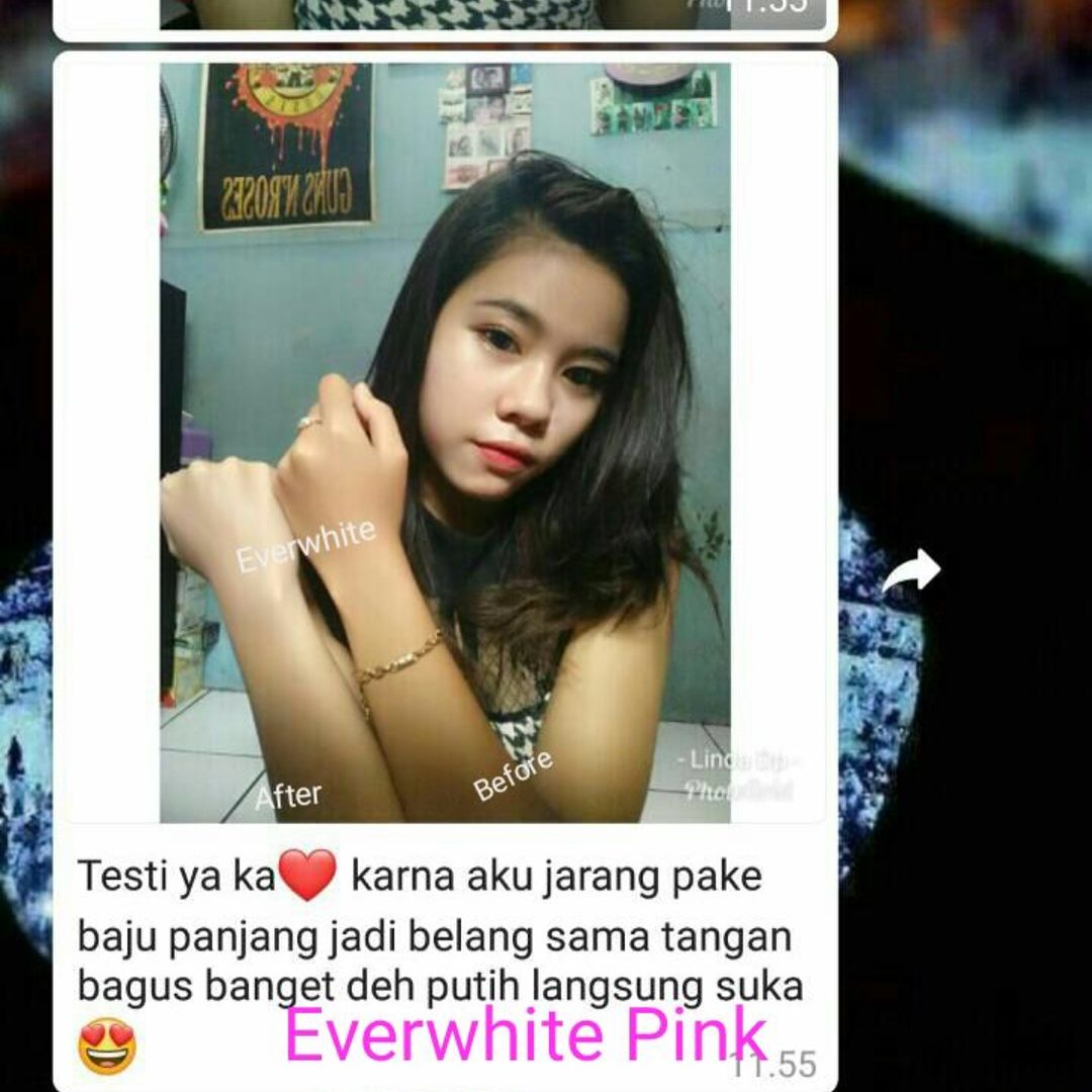 Testimoni Everwhite Brightening Body Cream 2