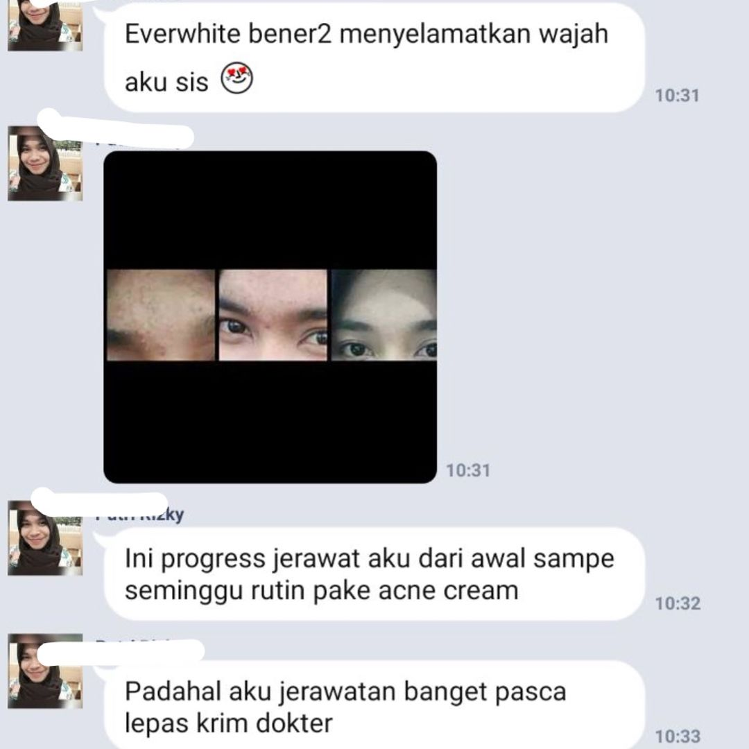 Review Testimoni Everwhite Acne Cream 3