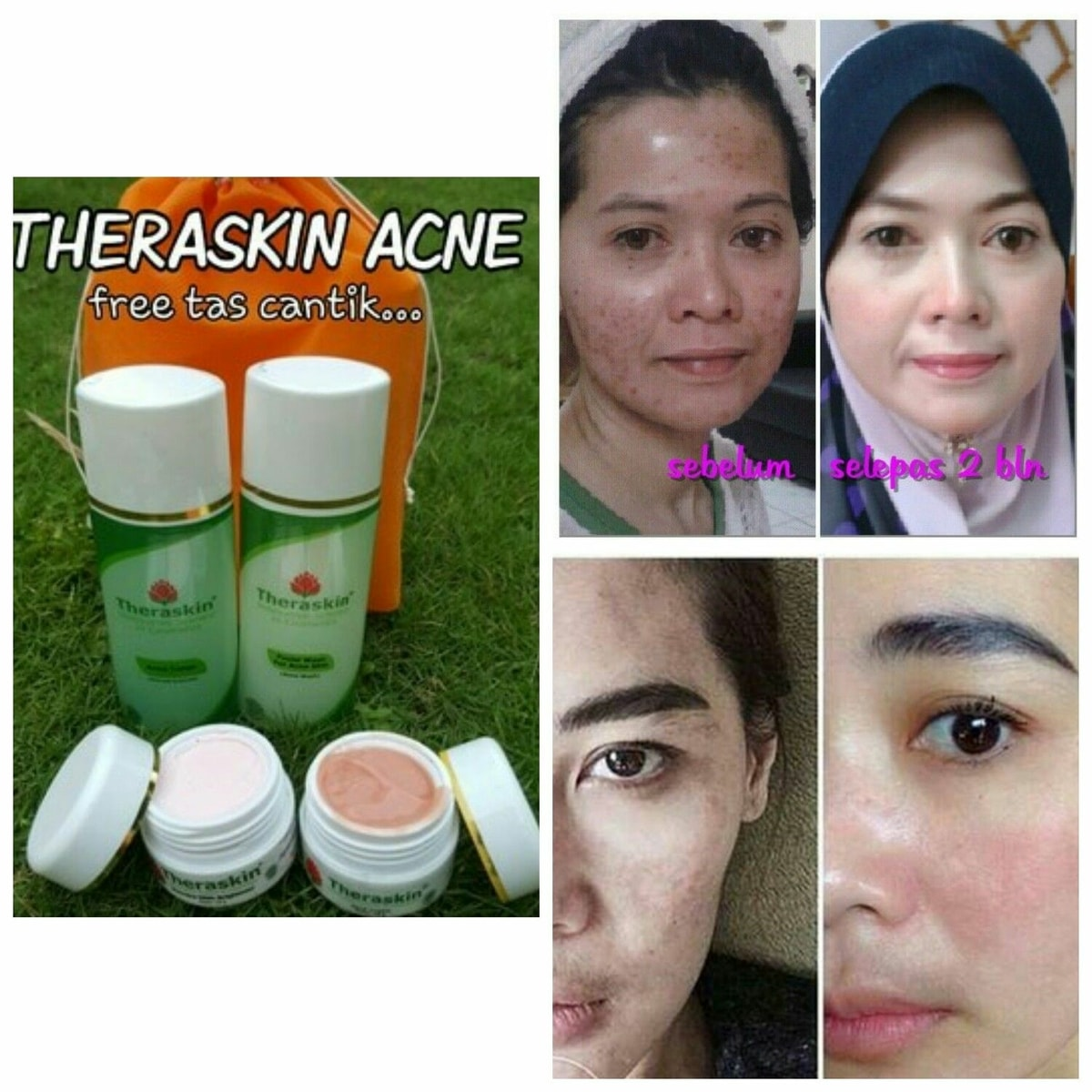 Testimoni Paket Theraskin Acne: Review dari Customer