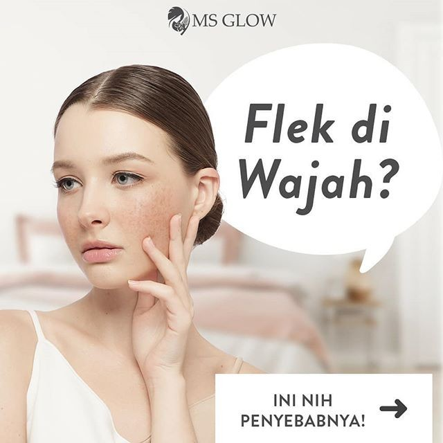 Ms Glow Ultimate: Diformulasikan Sebagai Treatment Wajah Flek Hitam